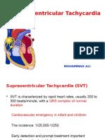 K7 - Supraventricular Tachycardia (SVT)