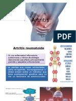 Artritis y Colagenopatias.