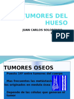 tumoresoseos-110109172440-phpapp02