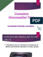 protesis monomaxilar