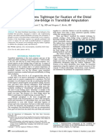 Fixation of the Distal Tibiofibular Bone-bridge in Transtibial Amputation.pdf