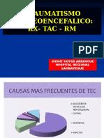Diagnóstico Por Imagen - Traumatismo Craneoencefálico