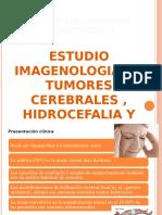 Diagnóstico Por Imagen - Tumores Cerebrales