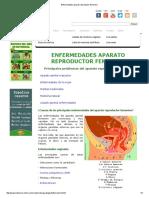 Enfermedades Aparato Reproductor Femenino