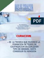 3.-CURACION_Y_ARRASTRE_MECANICO