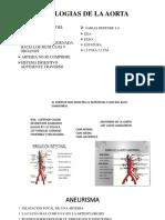patologias de ao y ivc