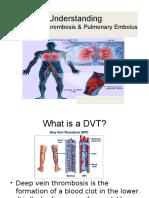 DVT & Pulmonary Embolus.pptx