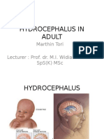 Hydrocephalus in Adult Present