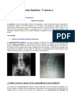 Espondiloartrosis Lumbar