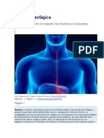Acalasia esofágica