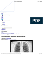 Cardiomediastinal anatomy on chest radiography | Radiology Case | Radiopaedia.org