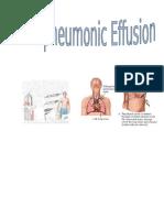 226458652 Parapneumonic Effusion Case Study Adult I