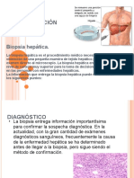 Biopsia Hepatica