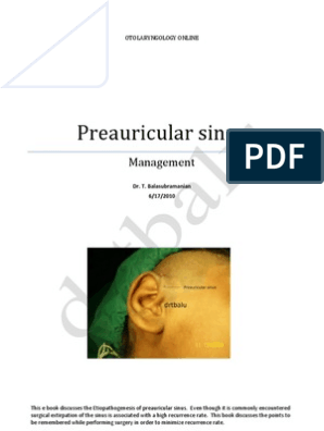 Preauricular sinus and its managment | Surgery | Ear