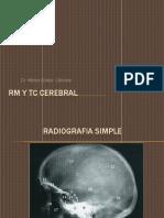 Tc y Rm Cerebral
