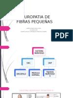 Neuropatia de Fibras Pequeñas