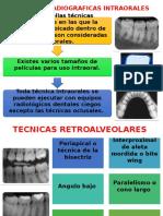 Diapo de Tecnicas Radiograficas Intraorales