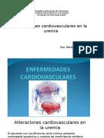Alteraciones Cardiovasculares en La Uremia