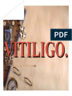 Vitiligo 1