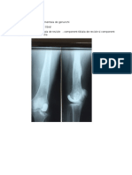 prezentare proteze