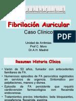 Caso Fibrilacion Auricular
