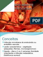 Endocardite Infecciosa Por Marcelo Pandolfo Instuição Santa