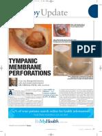 Tympanic Membrane Perforations Update Dr Nirmal Patel Article1 (2)