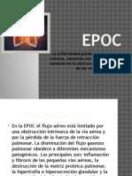 EPOC 2