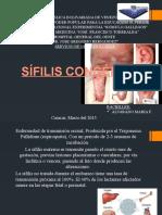 Sifilis Congénita Mf