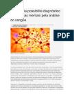 Tecnologia Possibilita Diagnóstico de Doenças Mentais Pela Análise Do Sangue