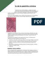 Tratamiento de La Gastritis Crónica
