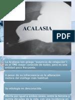 Trastornos motores del esofago ACALASIA