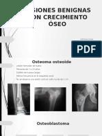 Lesiones-benignas-oseas