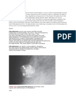 Benign Involuted Fibroadenoma Notes