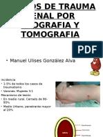 """Trauma Renal """"grados""""por ecografia y tomografia"""
