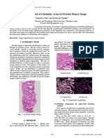 Extraction Method of Glandular Areas in Prostate Biopsy Image