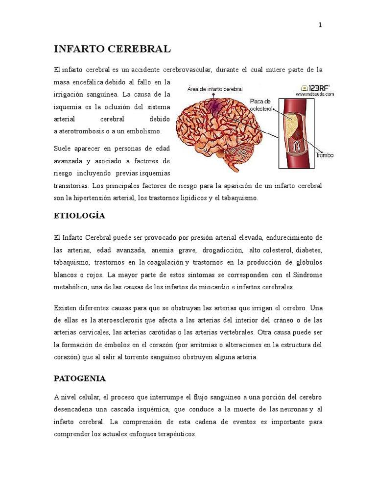 Principales causas de un infarto cerebral