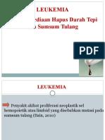 P 2.2.4 - Leukemia .pptx