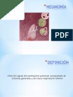 Neumonia-Pediatria 4