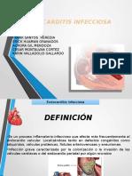 Endocarditis Infecciosa 1