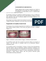 La Expansión en Ortodoncia