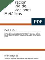 Diseño de La Cavidad en Incrustaciones Metalicas
