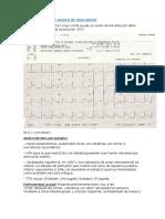 Caso 4 - Infarto Agudo de Miocardio