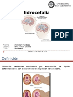Hidrocefalia Pediatría
