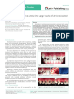 Interdisciplinary Conservative Approach of A Geminated Tooth