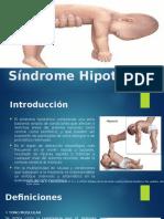 Síndrome Hipotónico