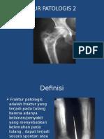 212879805 Fraktur Patologis Presentasi