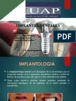 Implante de Ciru