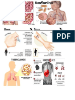 Imagenes Enfermedades Paludismo