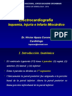 07 EKG Isquemia Miocardica UNJBG 2014